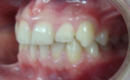 после лечения 2